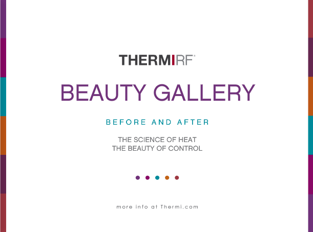 THERMIRF-beforeafter